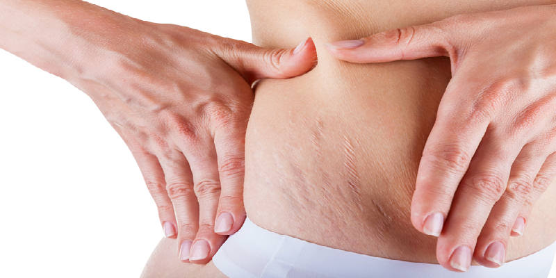ugly strech marks how to get rid of stretch marks