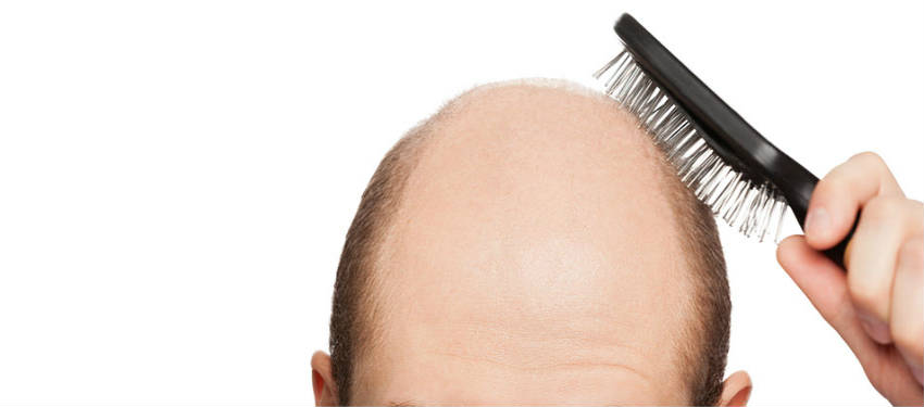 Hair Loss Treatment For Men and Women Hair Loss protocol