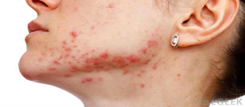 (HOW TO GET RIF OF ACNE) Scars Best Acne Treatment