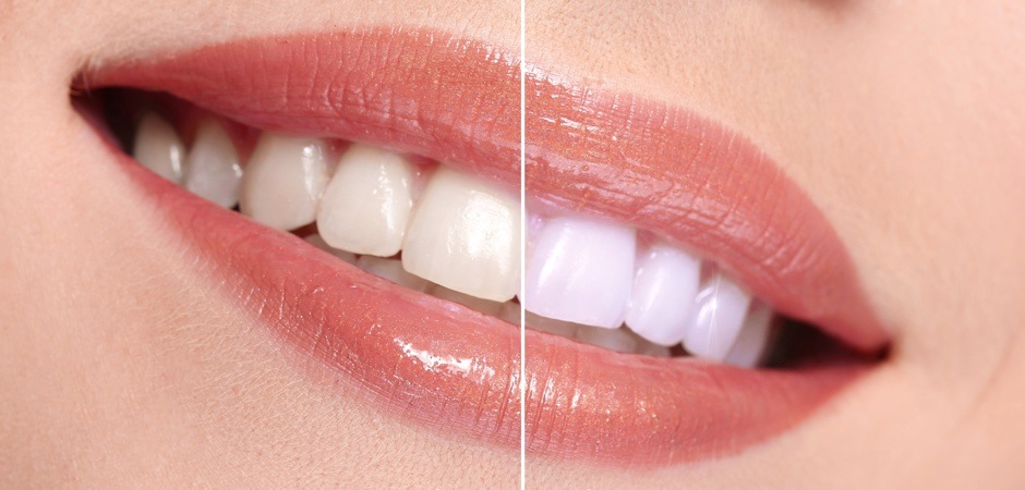 How To Whiten Teeth Have Natural White Teeth in 3 minutes ( Works 100% )