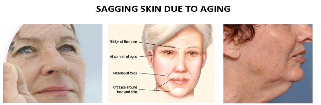How To Get Rid of SAGGY SKIN Under Eye Neck Face skin