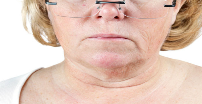 How to Remove Deep Neck Wrinkles Naturally