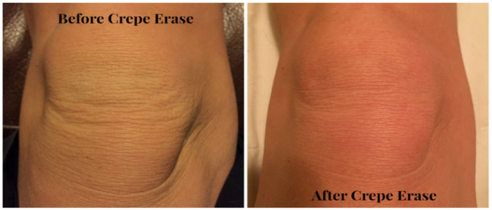Crepe Erase Skin - Crepe Correcting Body Complex Reviews