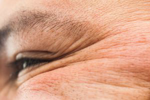 5 Wrinkle-Forming Habits and SAGGY Skin - You Need to Ditch