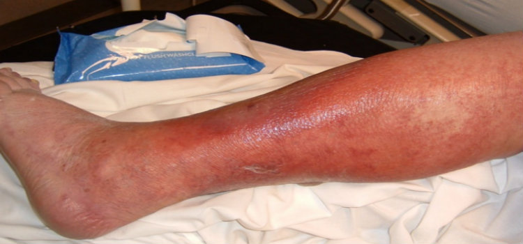 symptoms of cellulitis
