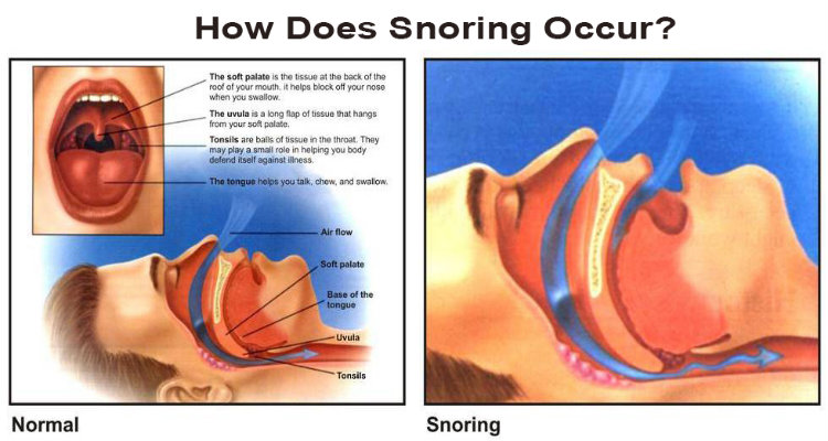 Stop Snoring Sleep Apnea Mask, Devices, Disorders, Symptoms