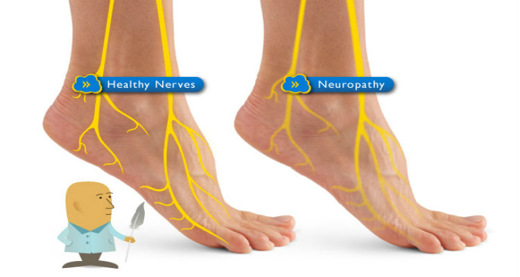 treatment for peripheral neuropathy