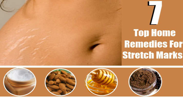 Stretch Mark Removal How to Get Rid of Stretch Marks