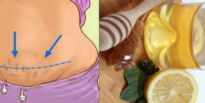 The Benefits of Lemon Water: Detox Your Body, Skin & Lose Weight