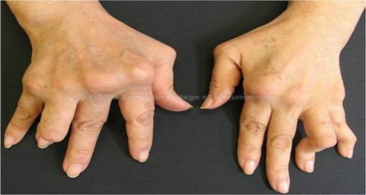 RHEUMATOID ARTHRISTIS Symptoms