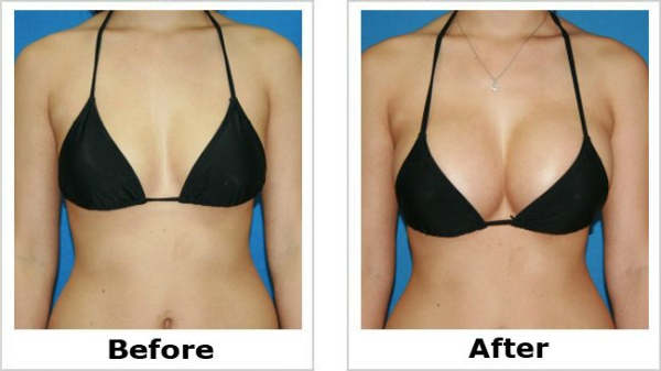 BREAST ACTIVES - Advanced All Natural Breast Enhancement System