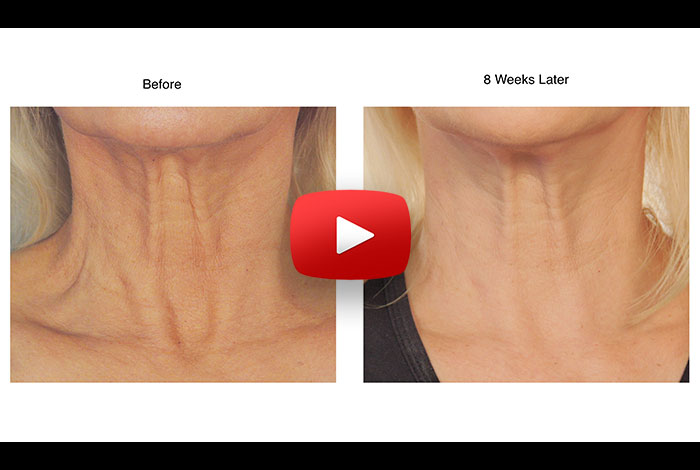How to lift saggy skin, without surgery