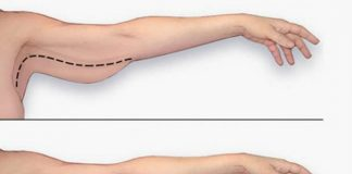 How To Lift Sagging Skin Without surgery